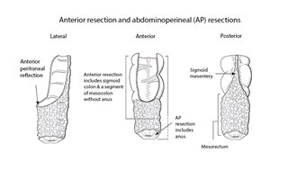 Anterior resection 1
