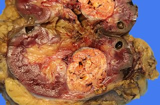 Kidney parenchymal tumour 2