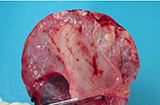 Placenta membranes dissection-fresh