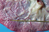 Placenta fetal surface external